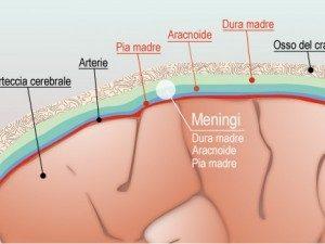Meningite : come riconoscerla e quali sono i sintomi